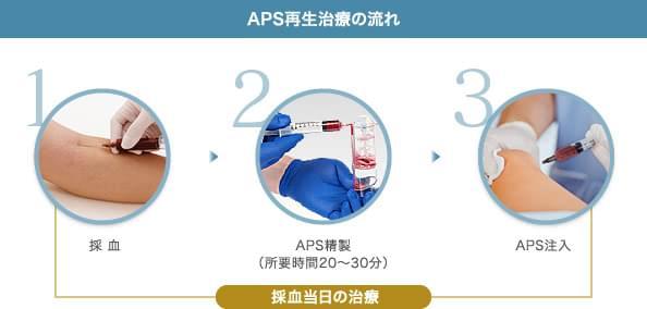 APS再生治療の流れ: 1.採 血 / 2.APS精製(所要時間20〜30分) / 3.APS注入 | 採血当日の治療
