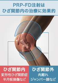 PRP-FD注射はひざ関節内の治療に効果的
