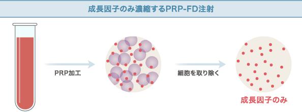 成長因子のみ濃縮するPRP-FD注射