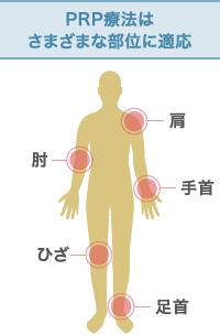 PRP療法はさまざまな部位に適応