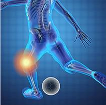 二次性の変形性ひざ関節症