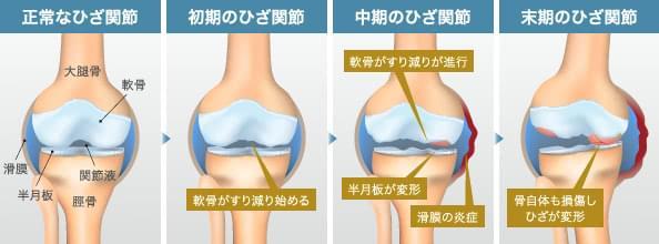 正常なひざ関節 | 初期のひざ関節: 軟骨がすり減り始める | 中期のひざ関節: 軟骨がすり減りが進行 / 半月板が変形 / 滑膜の炎症 | 末期のひざ関節: 骨自体も損傷しひざが変形