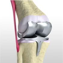 変形性ひざ関節症の手術的治療
